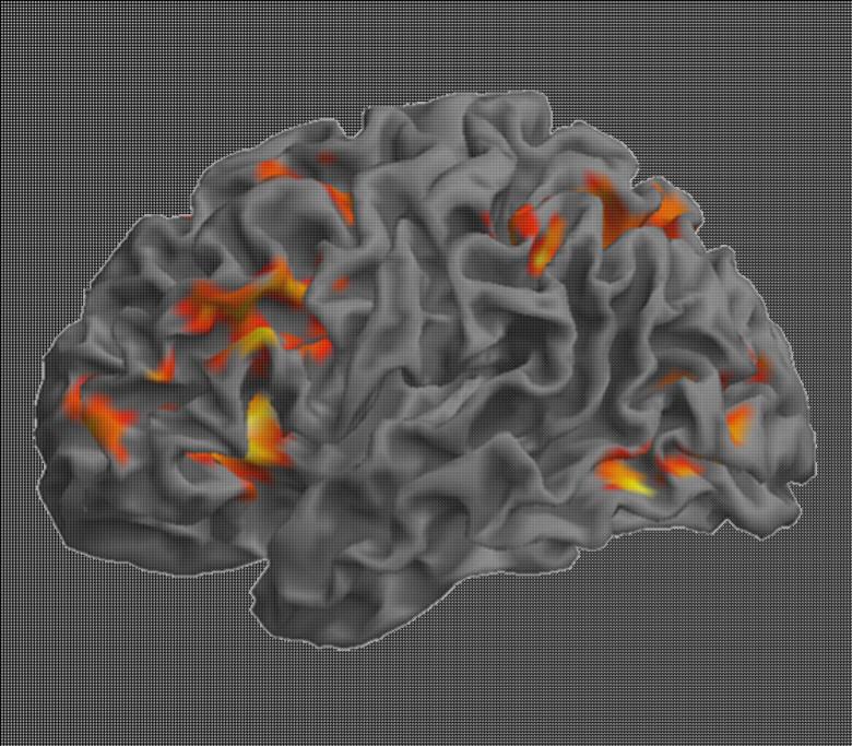 home page image, MRI image