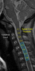 Data from the first event-related spinal cord fMRI experiment (Figley and Stroman, 2012).